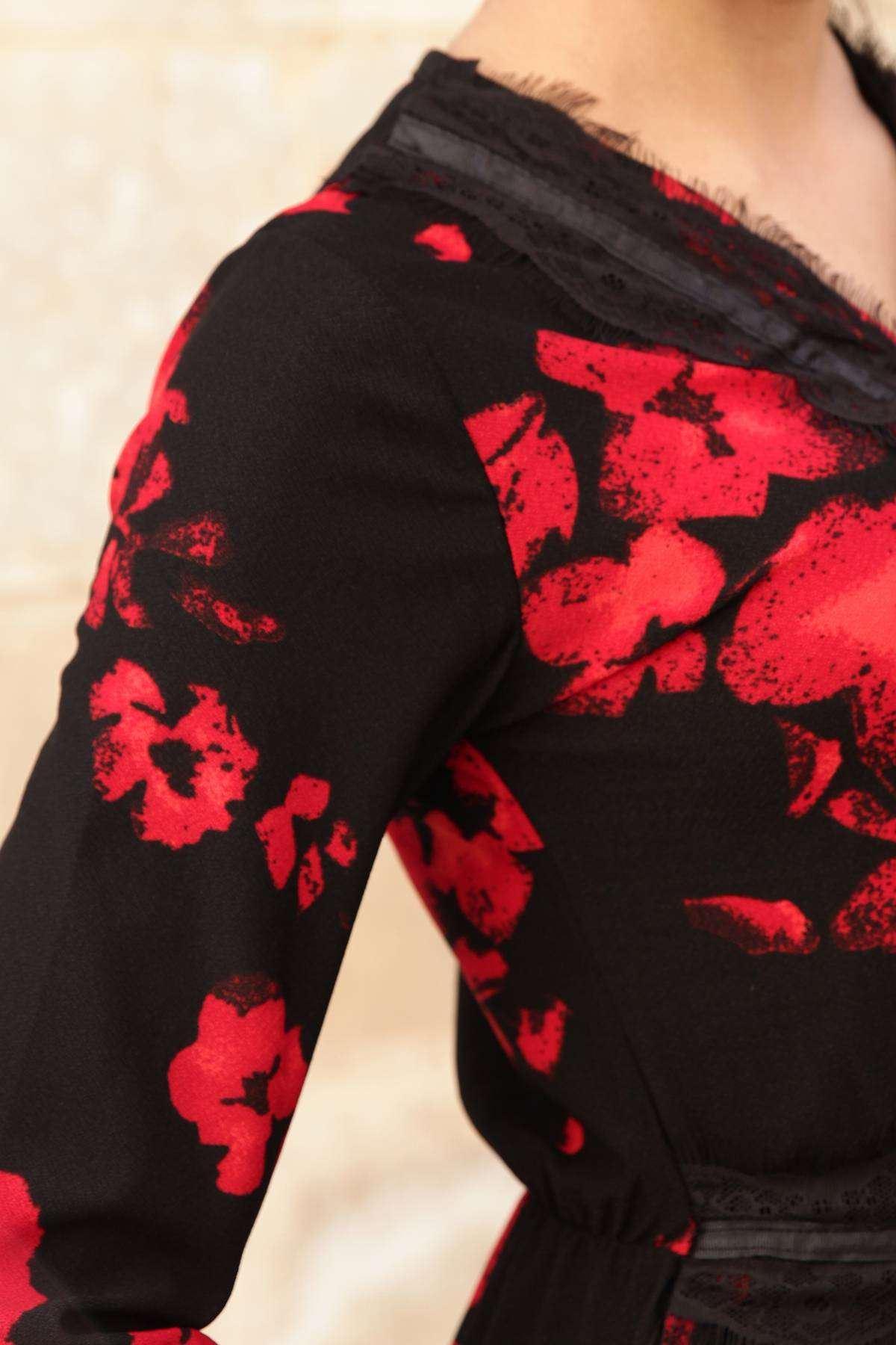 Önü Ve Yakası Dantel İşleme Detaylı Çiçek Desenli Elbise Siyah